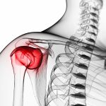 clinical presentations of shoulder pain
