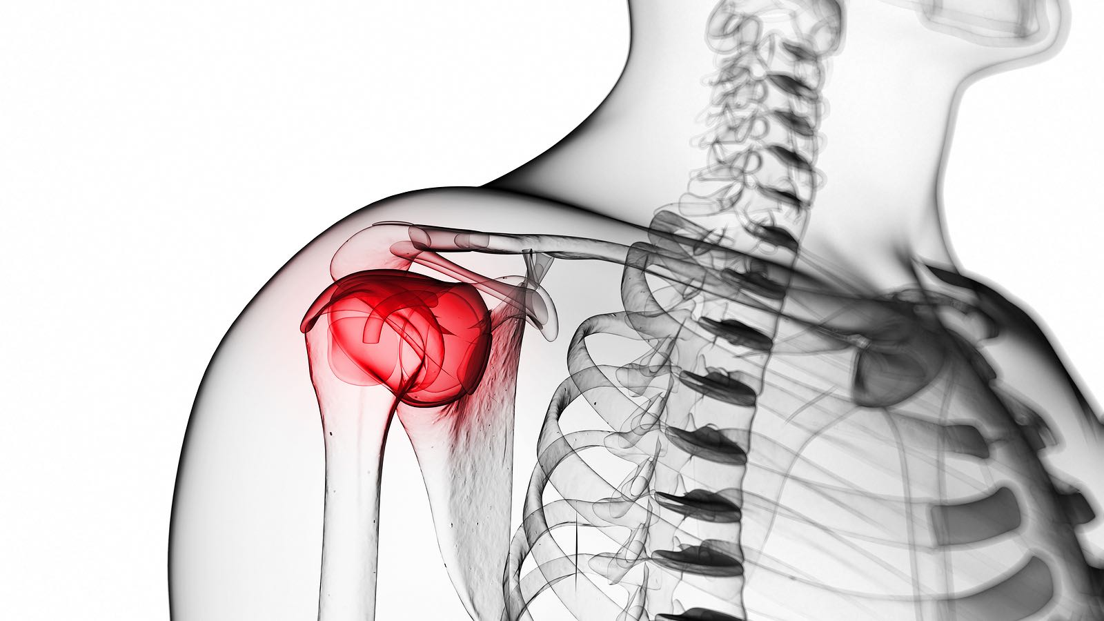 Clinical Presentations of Shoulder Pain - Explore how pain presents in the shoulder