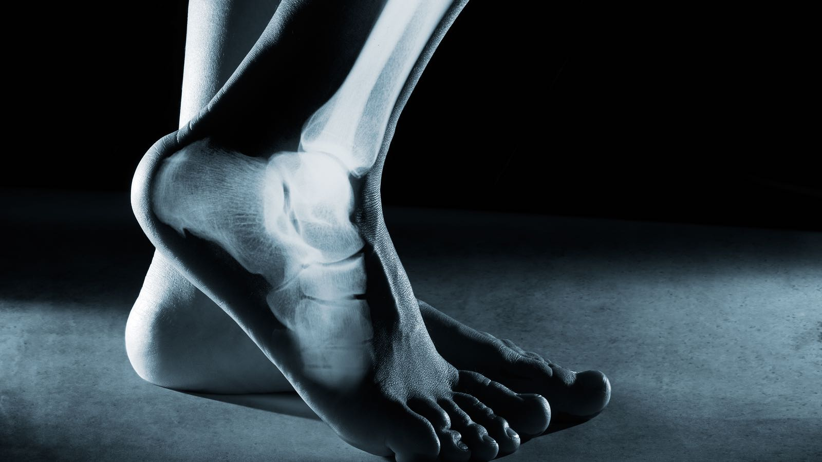 Models of Foot Function - Explore different models of foot function with podiatrist Kevin Bruce