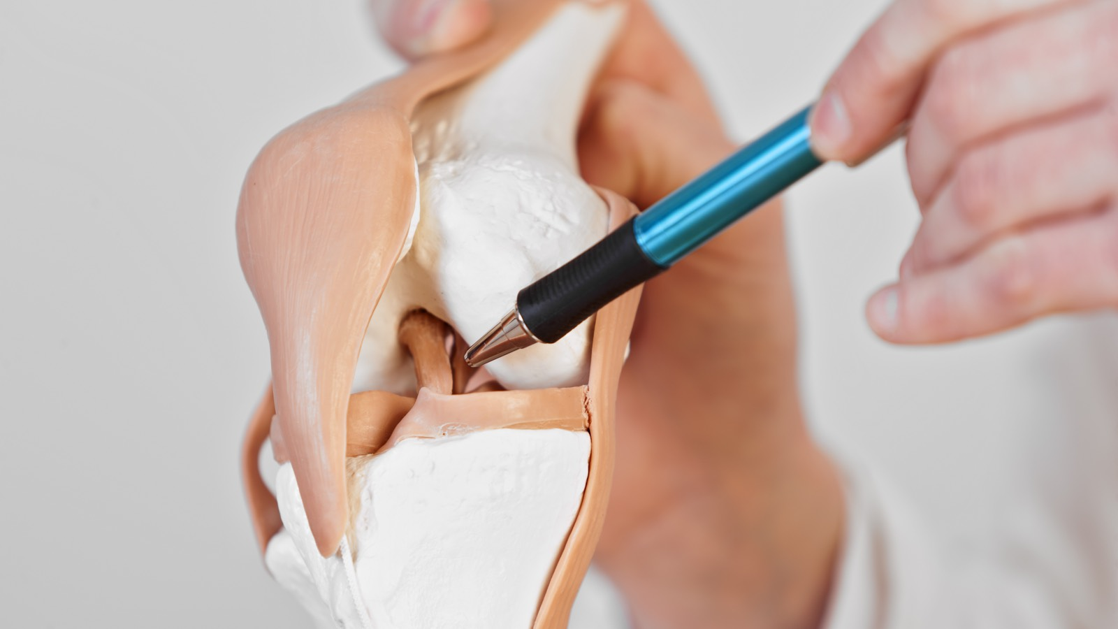 ACL Rehabilitation – Introduction : Anatomy, injury mechanisms and reconstruction of the ACL
