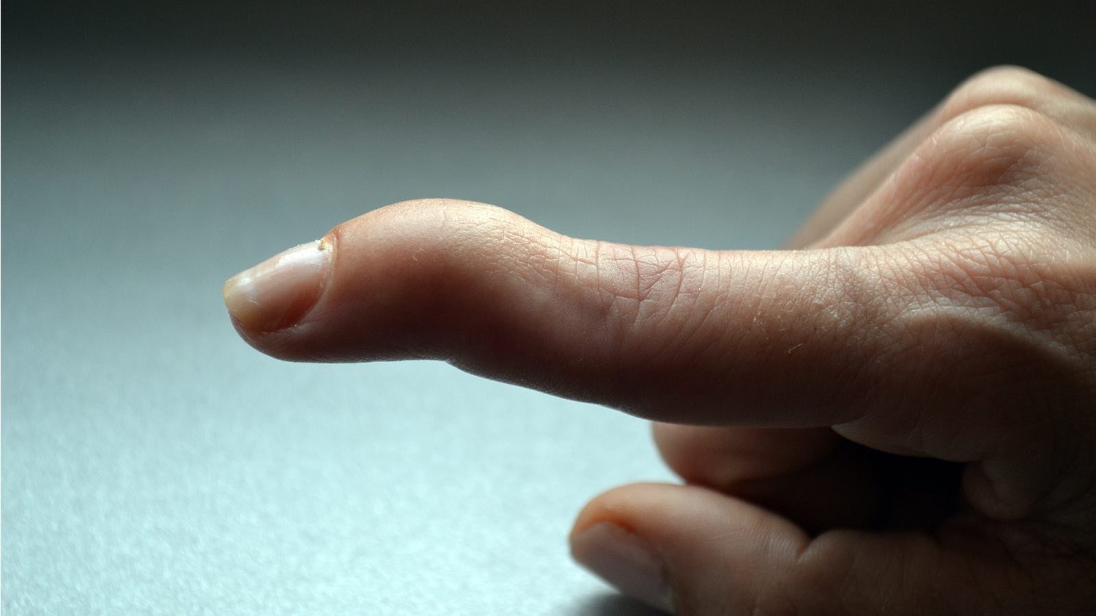 Central Slip and Mallet Finger Management : Effectively manage extensor tendon injuries of the finger to prevent disfigurement and impaired hand function