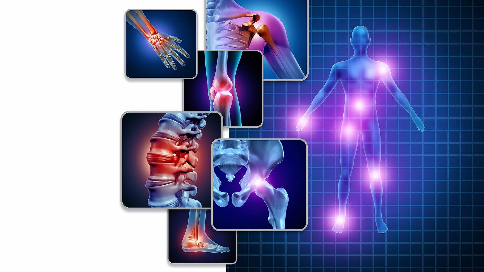 Co-morbidities and Extra-Articular Manifestations of Spondyloarthropathy : Accurately identify the wide-ranging, systemic effects of spondyloarthropathy and know when to refer to a specialist